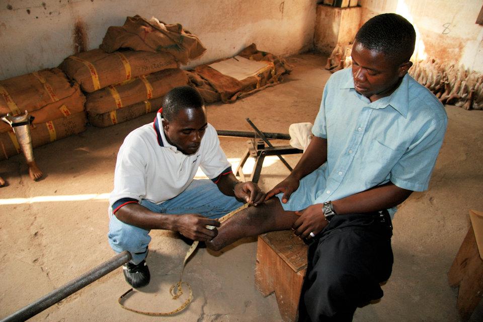 Man fitted for prosthetic leg